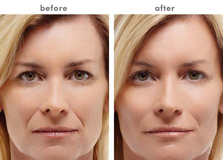 how to maintain facial hair
